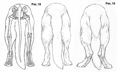Как исправить постав скакательных суставов склероз сустава стопы